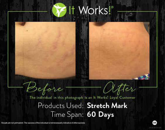 It Works Stretch Mark Cream Grassfed Mama